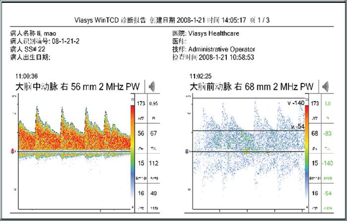 测量学实习报告格式_华科信心电信息系统-ECG - Q医疗-医疗信息化平台